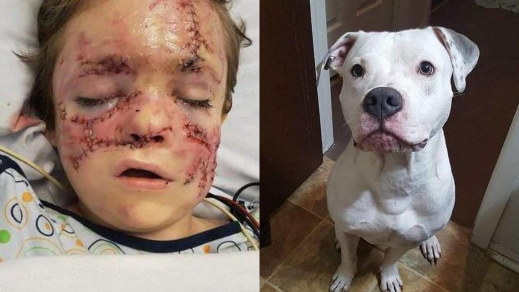 Boy's face ripped apart in savage attack by 'loveable' pet dog