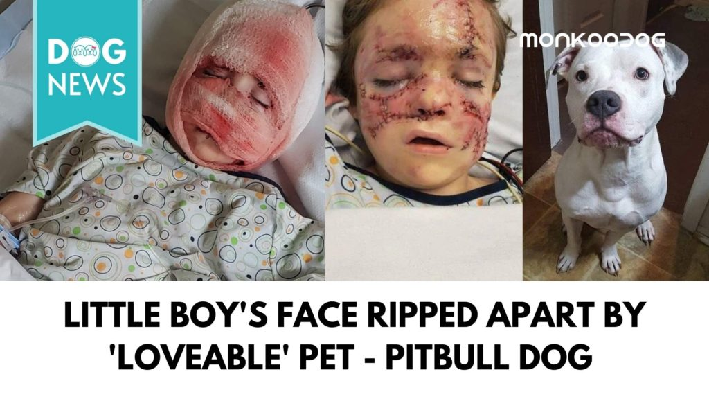 Little boy will live with permanent scarring after a savage attack by the family's pet dog