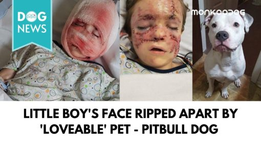 The Little Boy Will Live With Permanent Scarring After A Savage Attack By The Family's Pet Dog