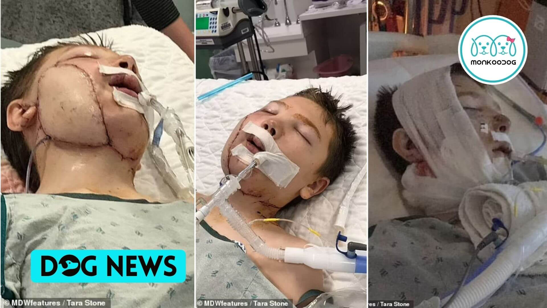 A 13-year-old boy got attacked by a neighbor's pitbull, leaving the jaw, throat, arteries, and voice box exposed with face muscles hanging