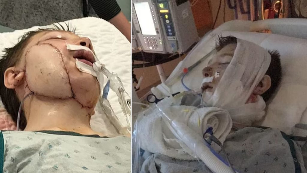 Noah, 13, lies on a hospital bed while being intubated after the life-threatening dog attack left severely injured.